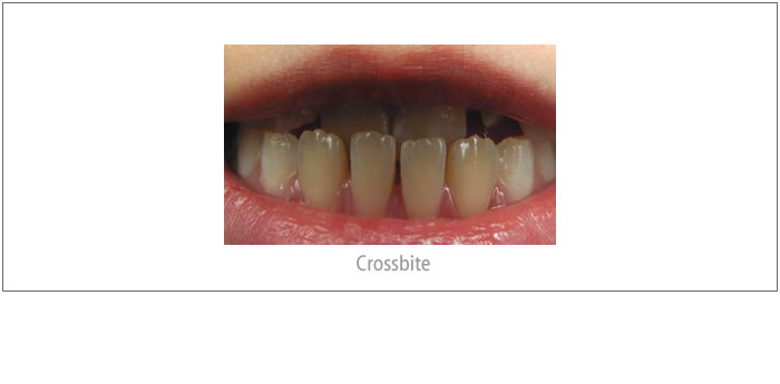 A Time-Critical Orthodontic Problem!