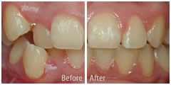 orthodontics before and after photos