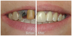 restorative dentistry before and after photos