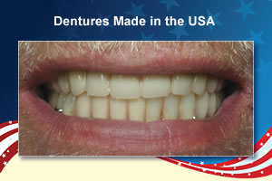 dental lab work made in usa
